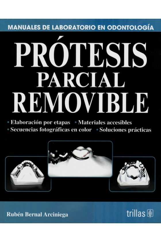 Prótesis Parcial Removible. Bernal